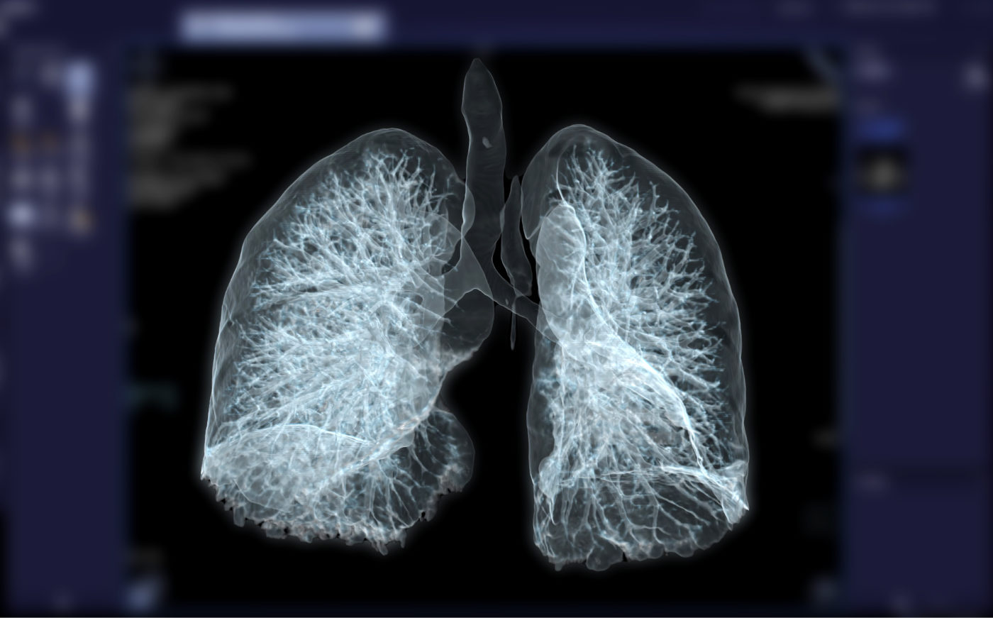 lung nodules